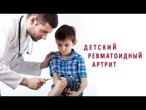 Детский ревматоидный артрит и его лечение