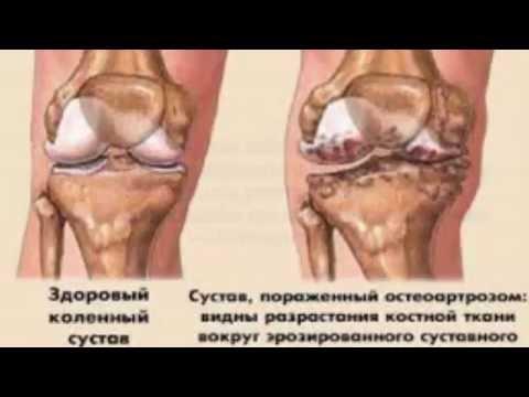 Как лечить боль в ногах