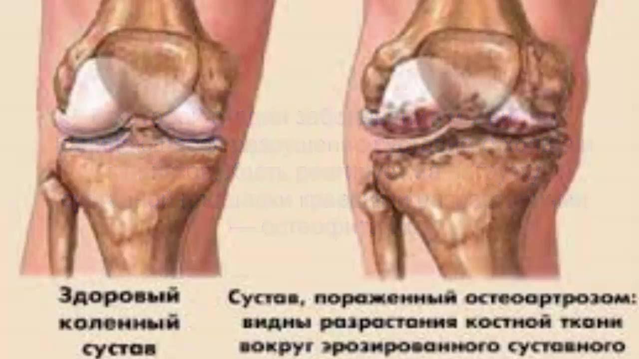 Боль в суставах, артрит, артроз локальная терапия заболеваний суставов