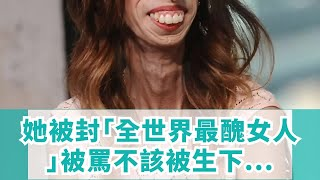 她被封「全世界最醜女人」被罵不該被生下來,她用「翻轉人生」反擊全球讚爆!