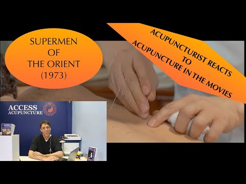 """Poked In The Movies: Acupuncturist reacts to """"Supermen of the Orient"""""""
