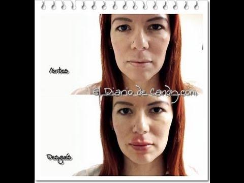 labios hinchados tras acido hialuronico