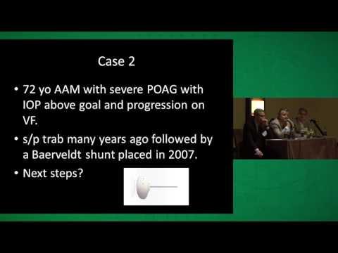 Expert Roundtable: Glaucoma Case Studies