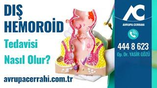 Dış Hemoroid Tedavisi