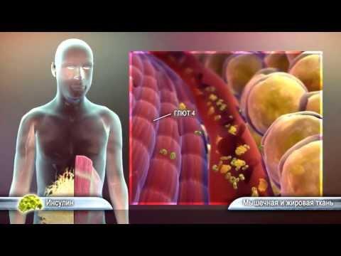 Сахарный диабет: симптомы, признаки и лечение сахарного