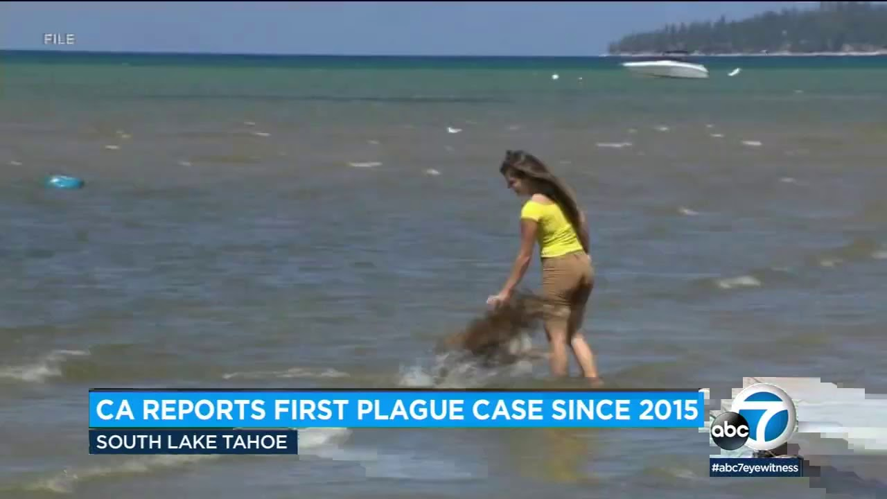 California Resident Tests Positive For The Plague