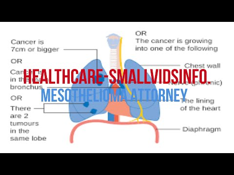 Mesothelioma Attorney | Attorney For Mesothelioma | Mesothelioma Trial Attorney
