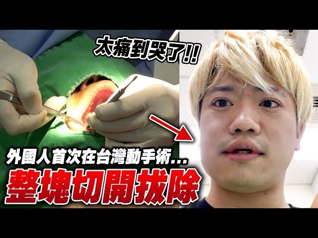 【哭了】JUN醬首次在台灣動手術...兩週後臉型變化超誇張😭