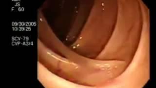 Паразиты в кишечнике  глисты,солитеры,аскариды,острицы,гельминты,черви симптомы,признаки,лечение
