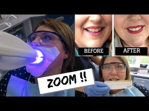 TEETH WHITENING - DOES IT WORK?  / ZOOM WHITENING