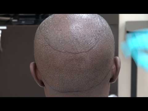 dr.-diep-scar-fue-hair-transplant-scar-hairline-bald-hair-loss-treatment-w/-minimal-scars