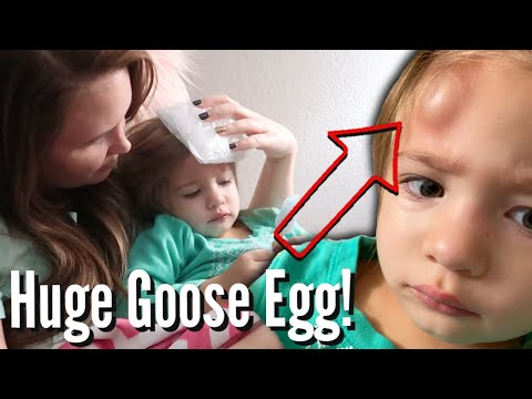 GIANT HEMATOMA ON TODDLER'S HEAD APPEARS AFTER PLAYING IN THE LOFT / TODDLER FORMS INSTANT GOOSE EGG