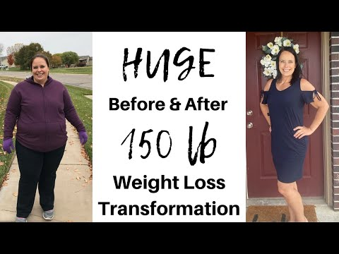 150 LB WEIGHT LOSS �� BEFORE & AFTER �� MASSIVE TRANSFORMATION �� GASTRIC SLEEVE SURGERY
