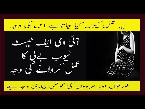 In Vitro Fertilization Process 7 Causes In Urdu IVF Test Tube Baby Ka Tarika Istemal Karne Ki Waja