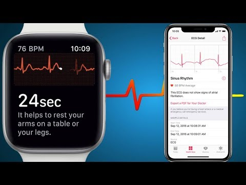 ECG ON APPLE WATCH - Apple Watch Heart Rate Monitor