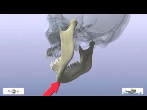 fractures of the mandibular condyle - YouTube