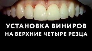 Виниры на зубы в Москве. Установка виниров на передние зубы