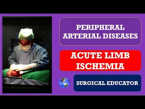ACUTE LOWER LIMB ISCHEMIA-- How To DIAGNOSE & TREAT/  Peripheral Arterial Diseases
