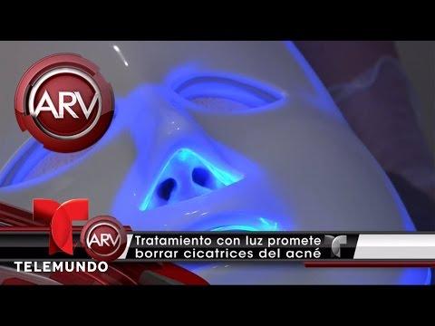 La Fototerapia que promete eliminar cicatrices del acné | Al Rojo Vivo | Telemundo