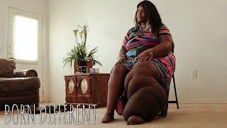 My Giant Leg Won't Stop Me Dancing | BORN DIFFERENT