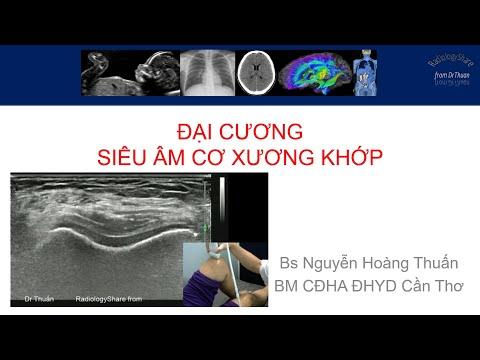 Siêu âm cơ xương khớp 2021 phần 4