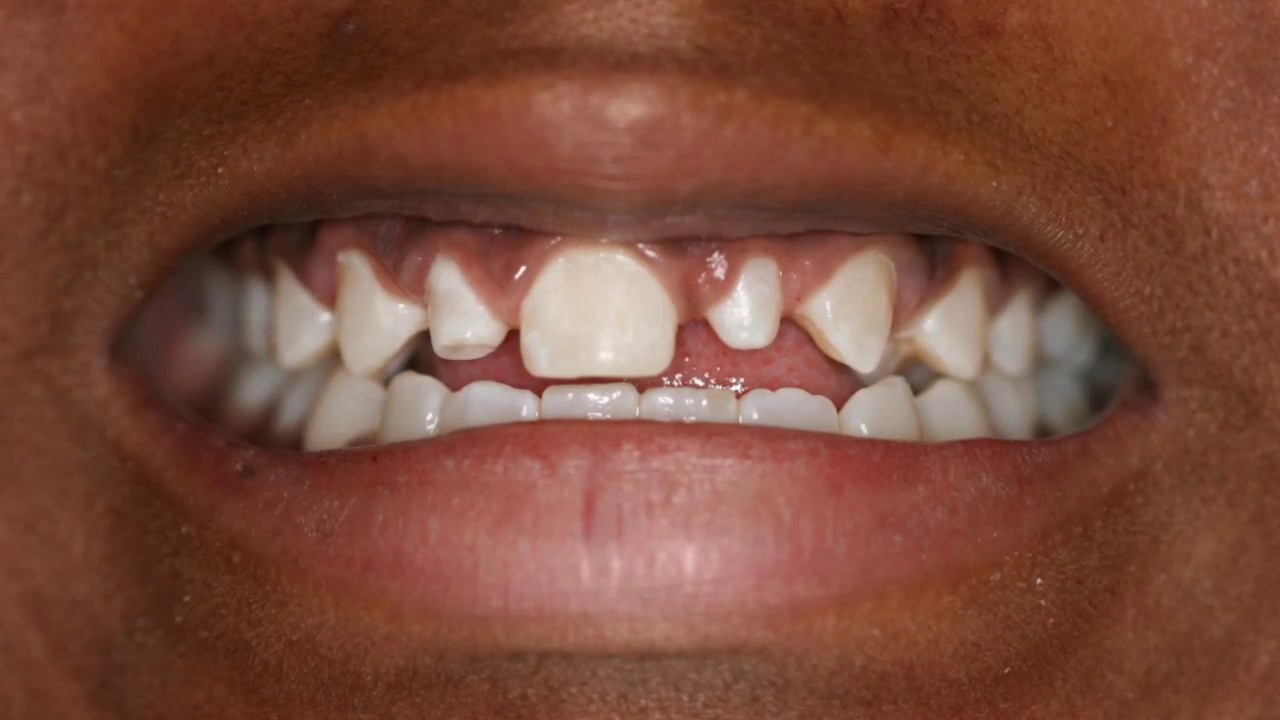 Snap-on Smile Uptown Houston | Cosmetic Dentist | Terri