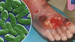 Flesh-eating bacteria: what you need to know to about vibriosis to avoid infection - TomoNews