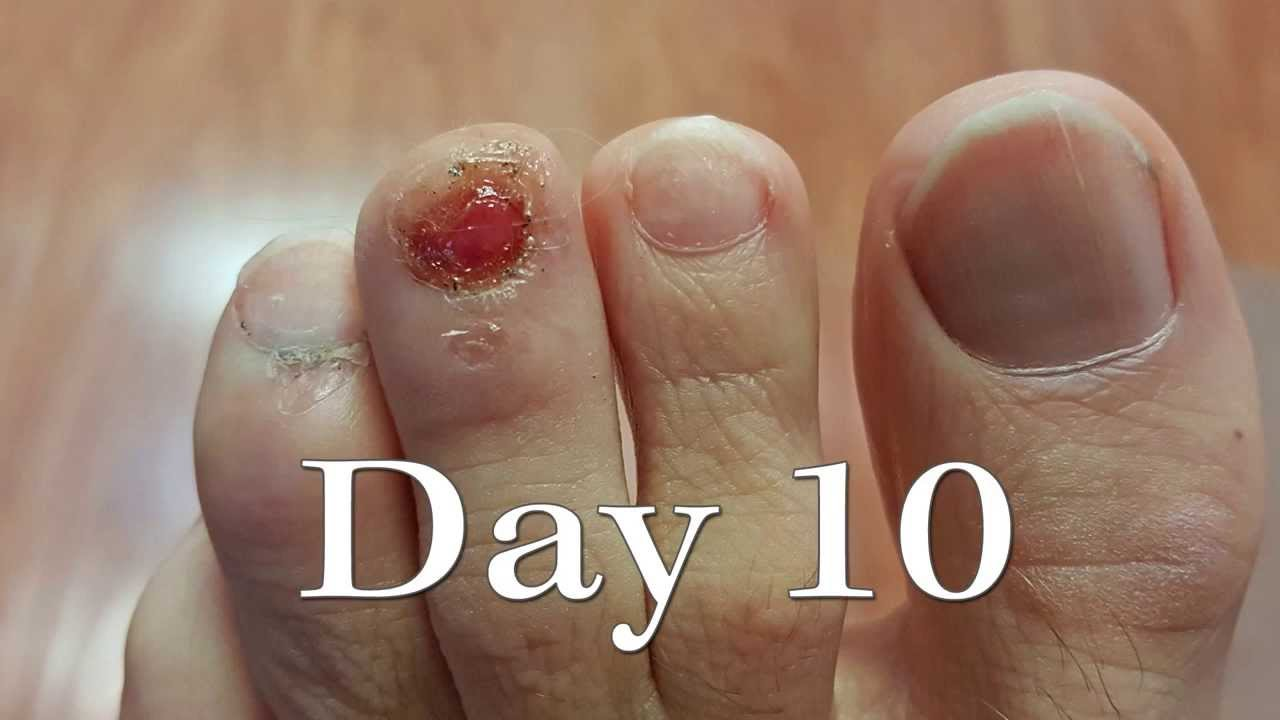Toenail Injury Time-Lapse Regrowth
