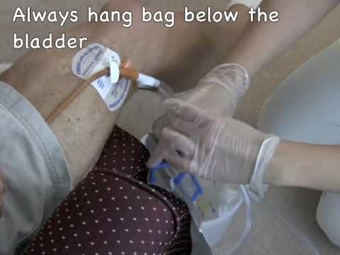 Nurses Notes:  Urinary Catheter Care