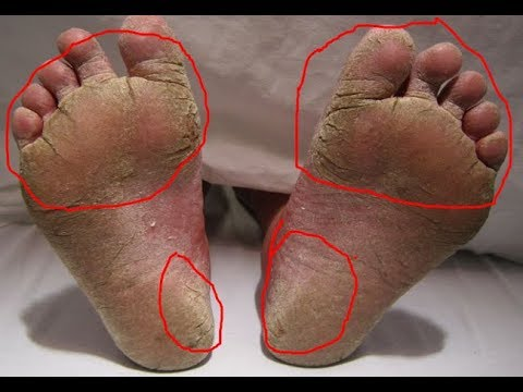 She rubs baking soda on her feet 2x per week The result is stunning Athlete's foot home remedy