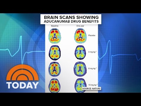 Alzheimer's Breakthrough: Study Shows New Drug Slows Memory Loss | TODAY