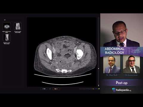 Abdominal Emergency Radiology Course - Trailer