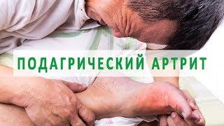 Что нужно знать о подагрическом артрите