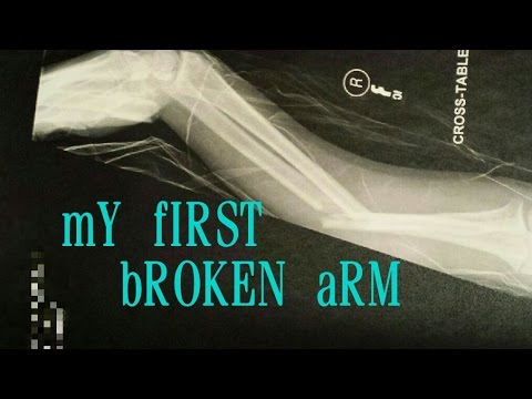 Worst Broken Arm X Ray