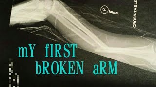MY BROKEN ARM (Radius and Ulna)