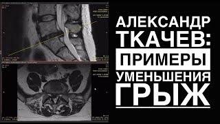 Межпозвонковая грыжа диска, примеры быстрого уменьшения размеров на МРТ. Метод Ткачева-Епифанова.