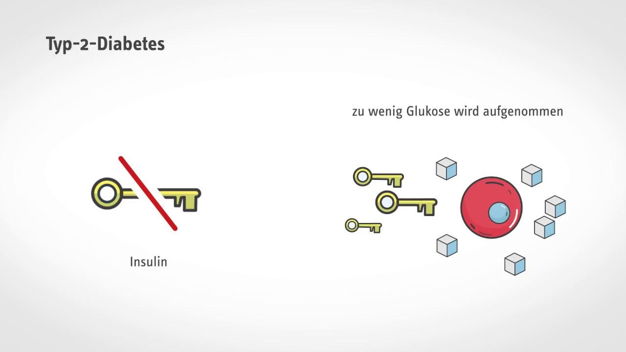 Schneller Stoffwechsel síntomas de diabetes