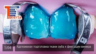 Как адгезивно подготовить ткани зуба к фиксации винира. Серия 1/4
