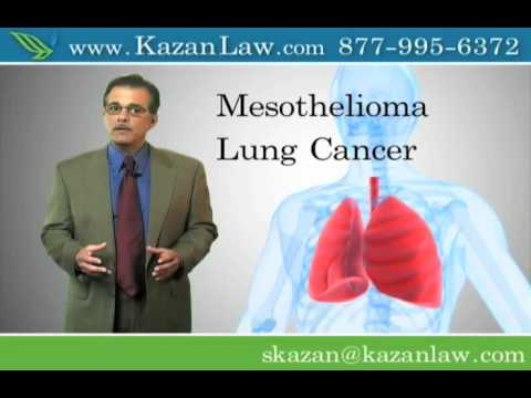 asbestos-exposure-causes-lung-cancer-and-mesothelioma--video