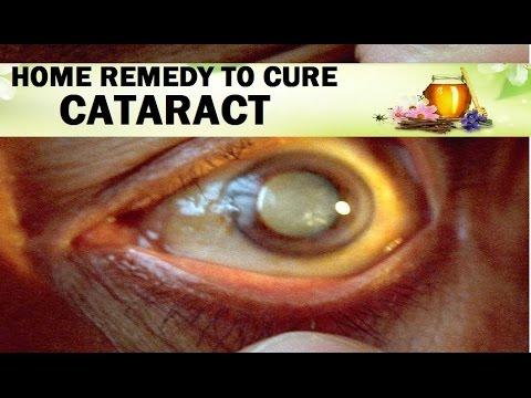 HOME REMEDY TO CURE CATARACT II рдШрд░реЗрд▓реВ рдЙрдкрдЪрд╛рд░ рд╕реЗ рдореЛрддрд┐рдпрд╛рдмрд┐рдВрдж рдХрд╛ рд░рдЦ рд░рдЦрд╛рд╡ II
