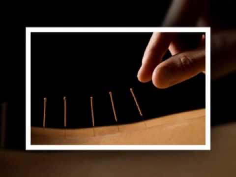 akupunktur vesterbro