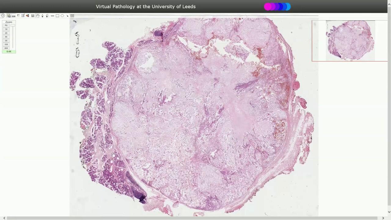 pleomorphic adenoma histology)