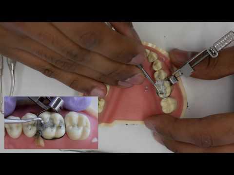 Amalgam Fill Restoration - Simulation Clinic Demonstration