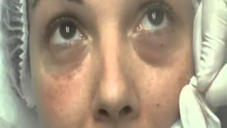 cerne acide hyaluronique