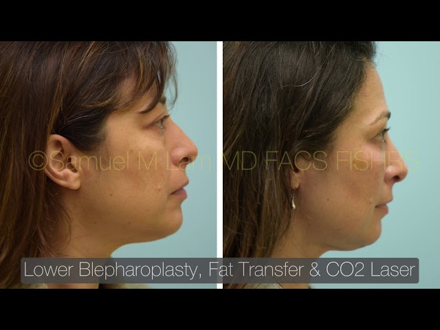 Dallas Lower Blepharoplasty, Fat Graft, and CO2 Laser Before and After Photos
