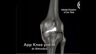 Évitez les blessures du ligament croisé antérieur ACL avec des ischio-jambiers en béton!