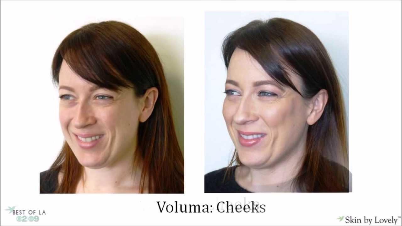 Juvederm Voluma for Cheek Augmentation