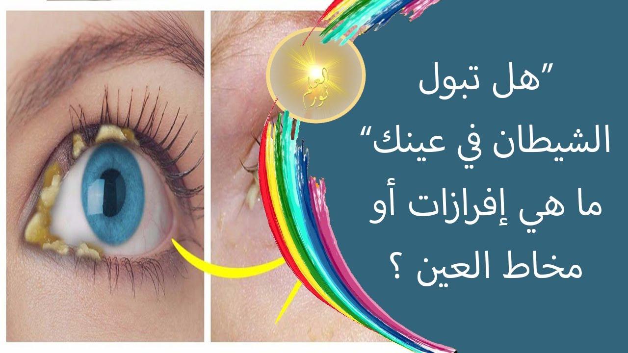 هل تعلم ما هي إفرازات أو مخاط العين ؟ .. هل تبول الشيطان في عينك  ؟!