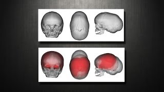 Craniosynostosis - Virtual Cranial Vault (skull) Reconstruction