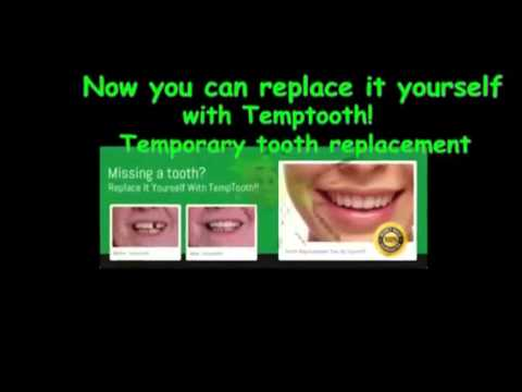How to make a tooth bridge temptooth youtube how to make a tooth bridge temptooth solutioingenieria Images